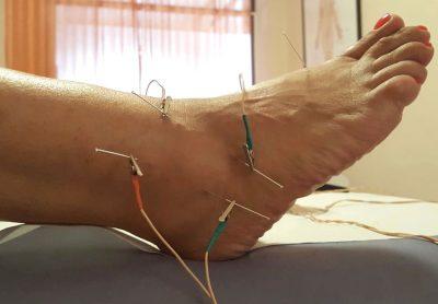 Eva-Costa-dieet-acupunctuur-ibiza-2020-01